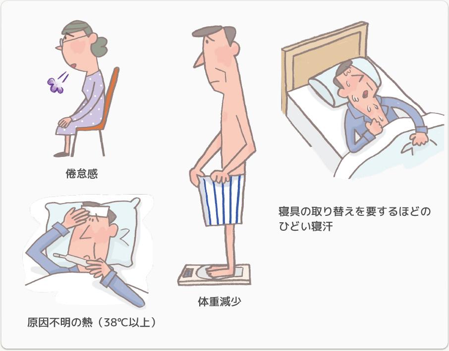 症状 初期 悪性 リンパ腫