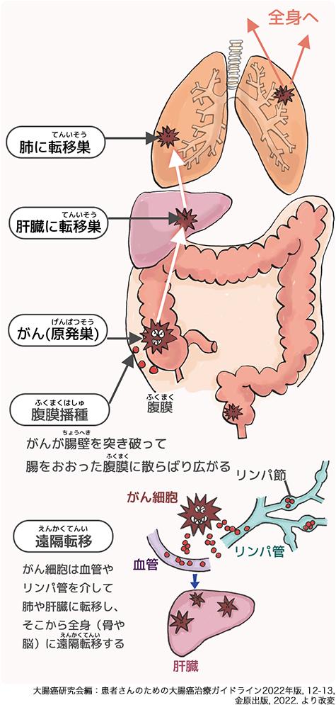 花嫁 大腸癌 ステージ4