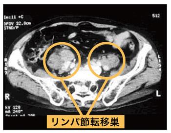 CTは高速に回転するレントゲン装置の中に入って体の断面画像を撮影する検査で、リンパ節への転移や周辺組織へ広がっているかどうかを調べるために行います。