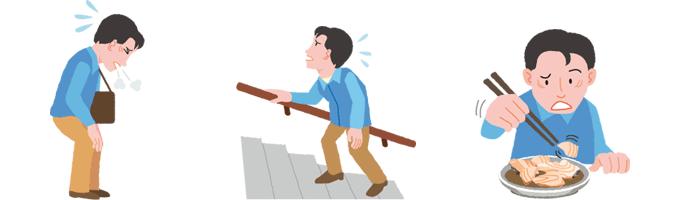 SBMA STATION|SBMAの症状とその対策|運動障害|運動障害とは?